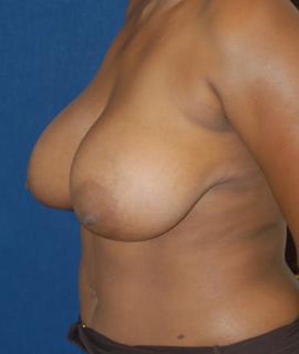 Breast Reduction Gallery - Patient 4861765 - Image 5