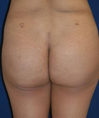 Buttock Lift Gallery - Patient 4861766 - Image 2