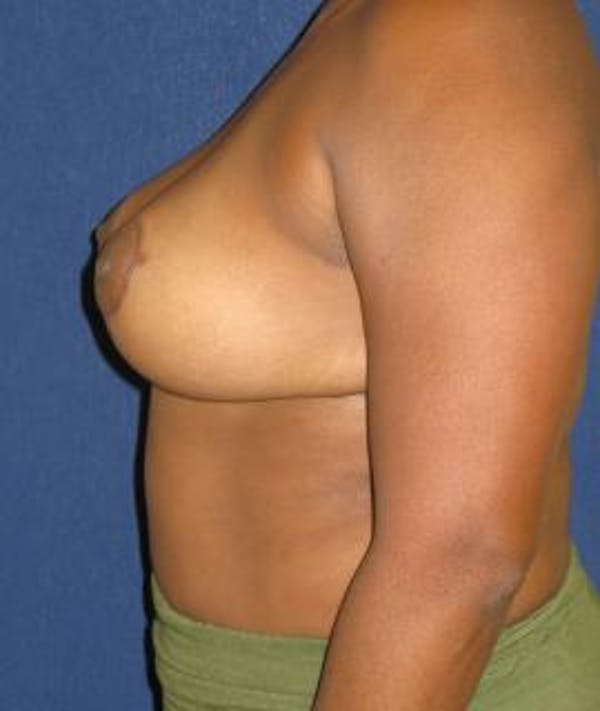 Breast Reduction Gallery - Patient 4861765 - Image 6