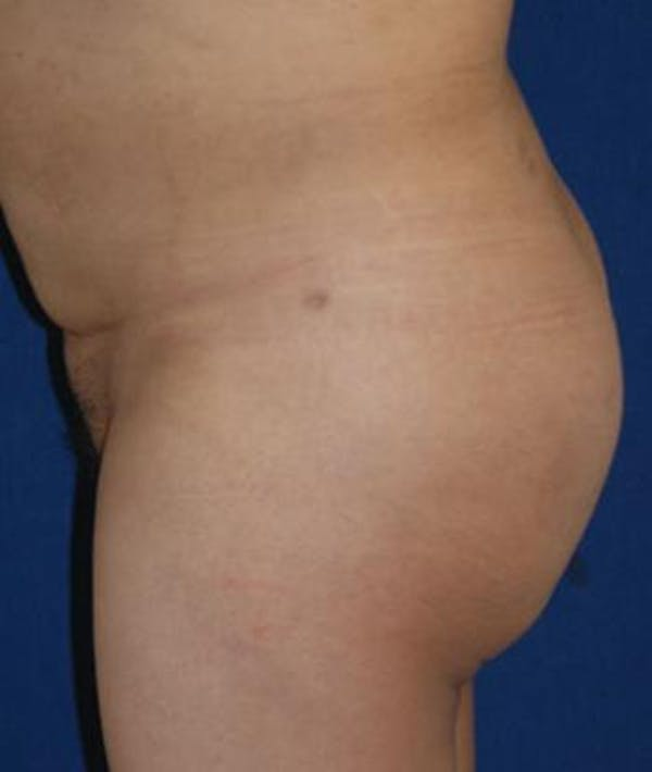 Buttock Lift Gallery - Patient 4861766 - Image 4