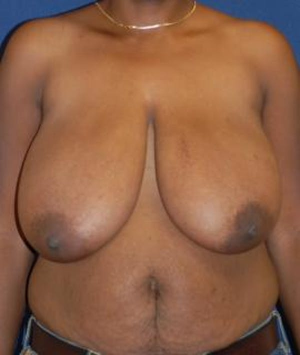 Breast Reduction Gallery - Patient 4861767 - Image 1