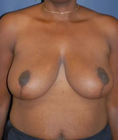 Breast Reduction Gallery - Patient 4861767 - Image 2