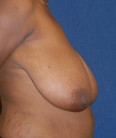 Breast Reduction Gallery - Patient 4861767 - Image 4