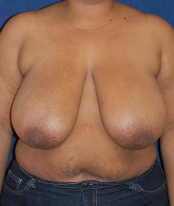 Breast Reduction Gallery - Patient 4861770 - Image 1