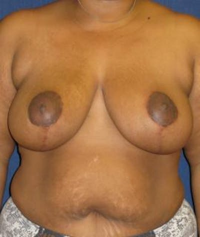 Breast Reduction Gallery - Patient 4861770 - Image 2