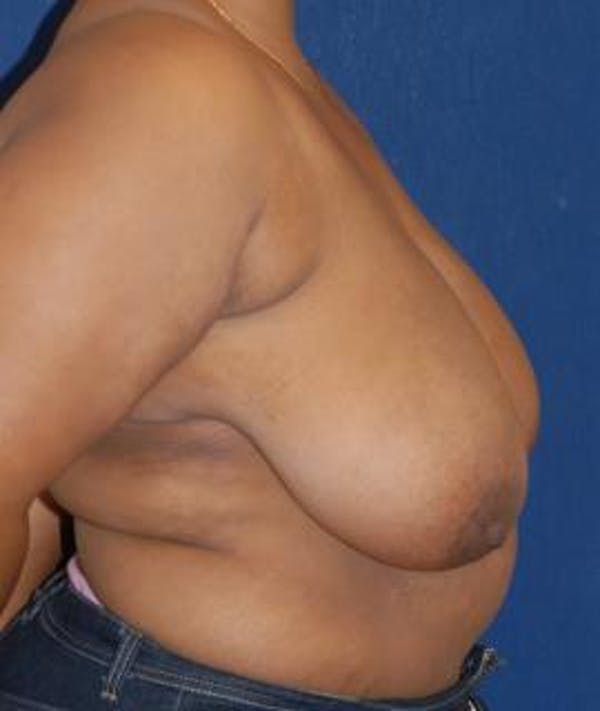 Breast Reduction Gallery - Patient 4861770 - Image 3