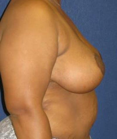 Breast Reduction Gallery - Patient 4861770 - Image 4