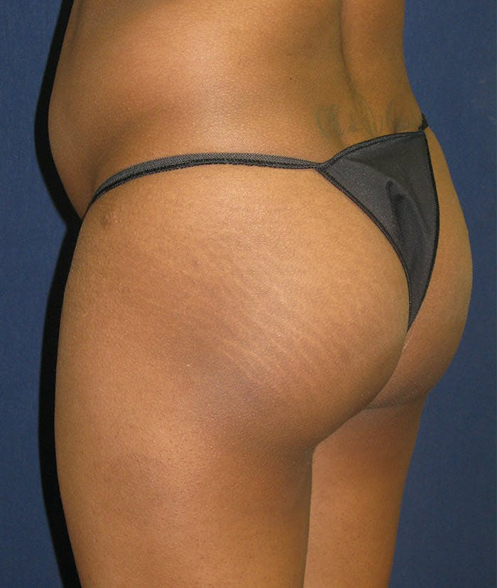 Buttock Lift Gallery - Patient 4861774 - Image 1