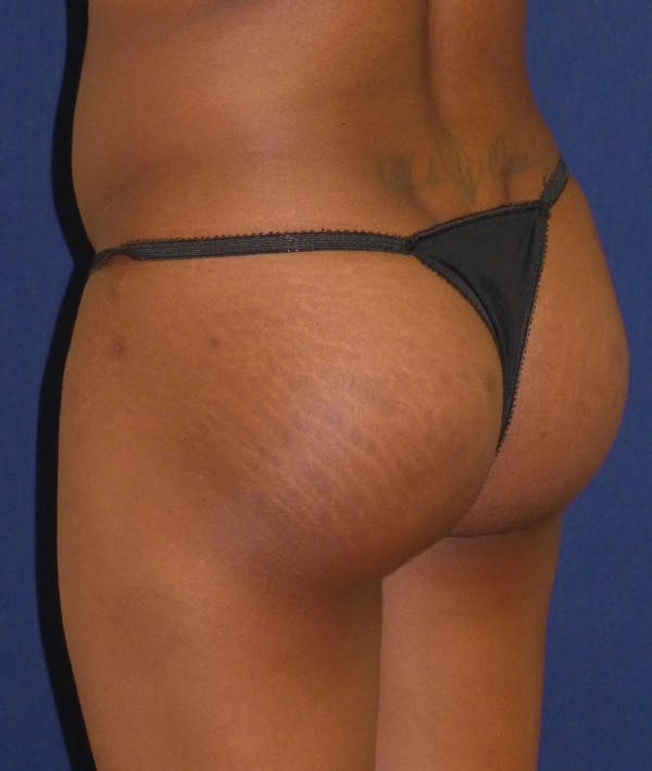 Buttock Lift Gallery - Patient 4861774 - Image 2