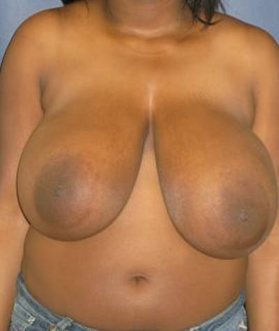 Breast Reduction Gallery - Patient 4861772 - Image 1