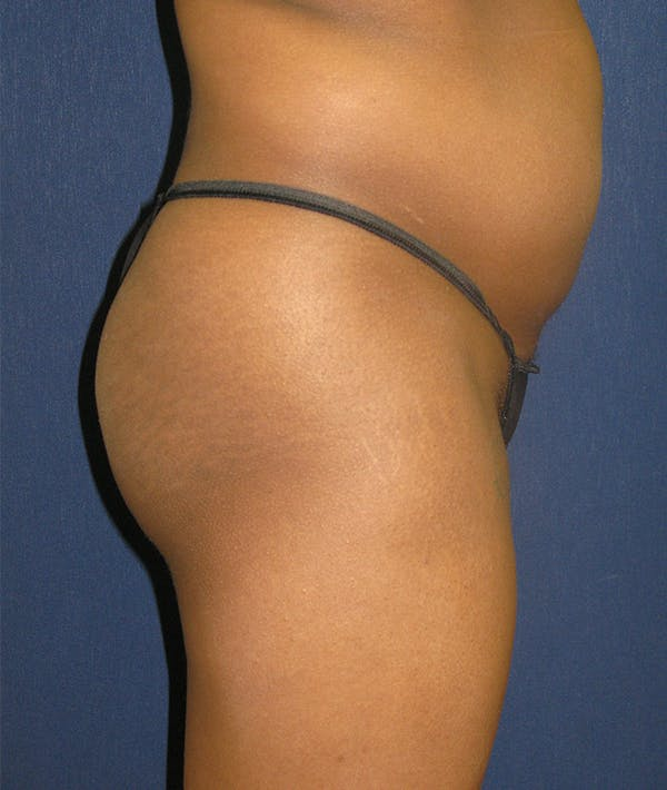 Buttock Lift Gallery - Patient 4861774 - Image 3