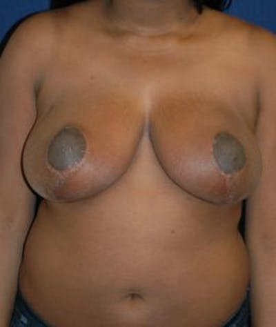 Breast Reduction Gallery - Patient 4861772 - Image 2