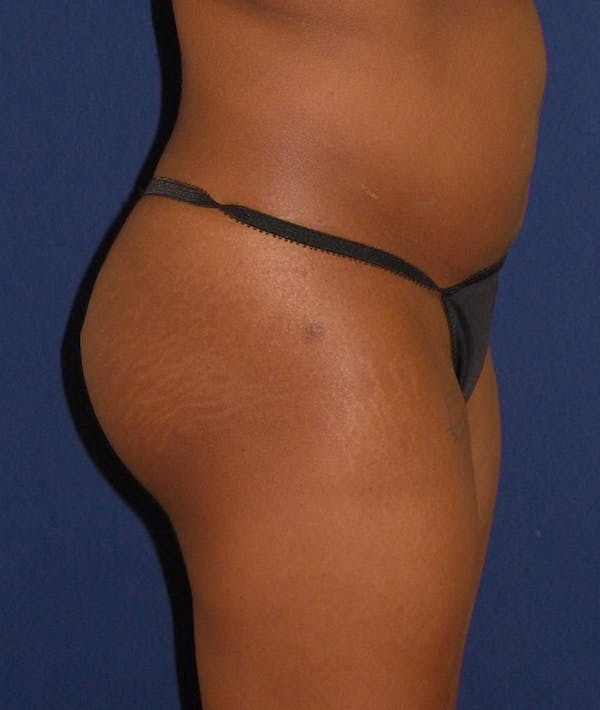 Buttock Lift Gallery - Patient 4861774 - Image 4