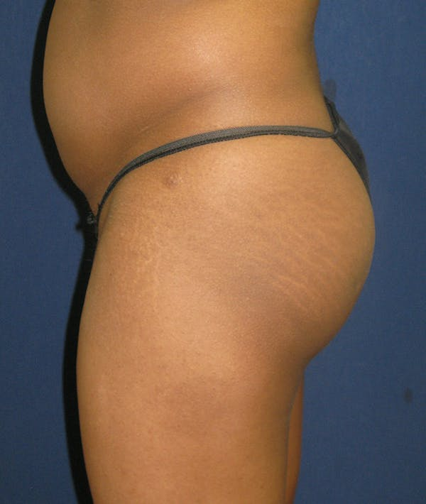 Buttock Lift Gallery - Patient 4861774 - Image 5