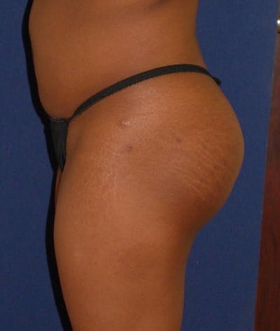 Buttock Lift Gallery - Patient 4861774 - Image 6