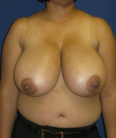 Breast Reduction Gallery - Patient 4861773 - Image 1