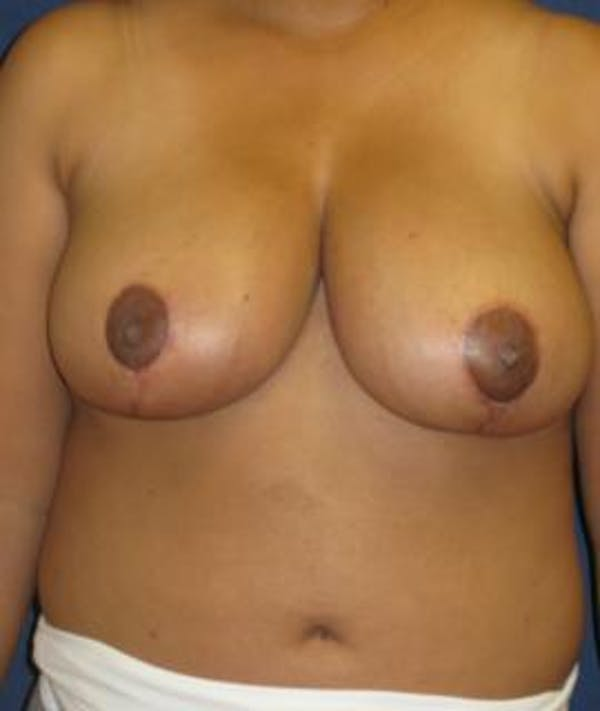 Breast Reduction Gallery - Patient 4861773 - Image 2