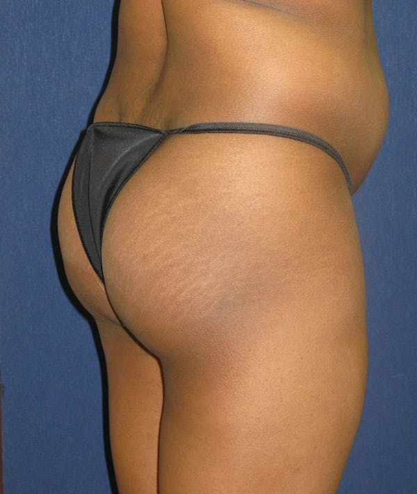 Buttock Lift Gallery - Patient 4861774 - Image 7