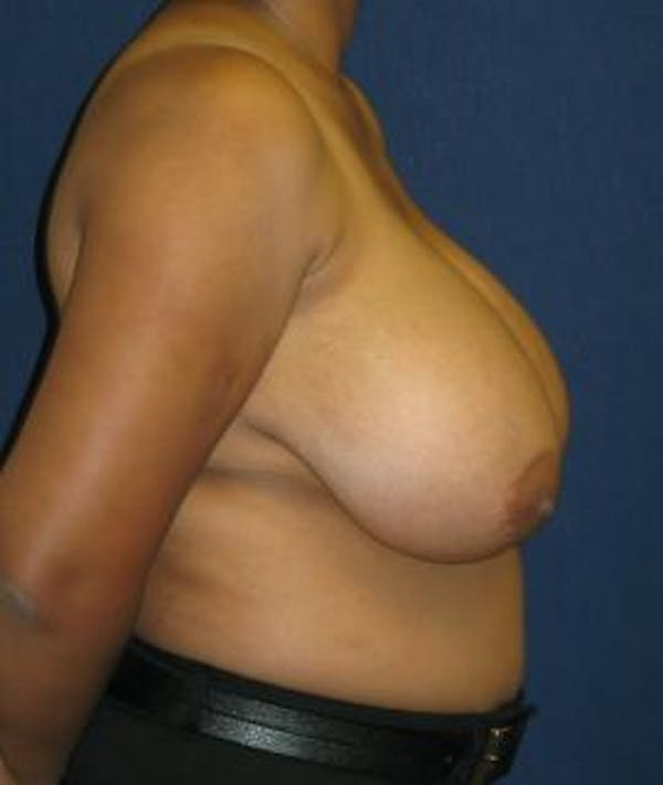 Breast Reduction Gallery - Patient 4861773 - Image 3