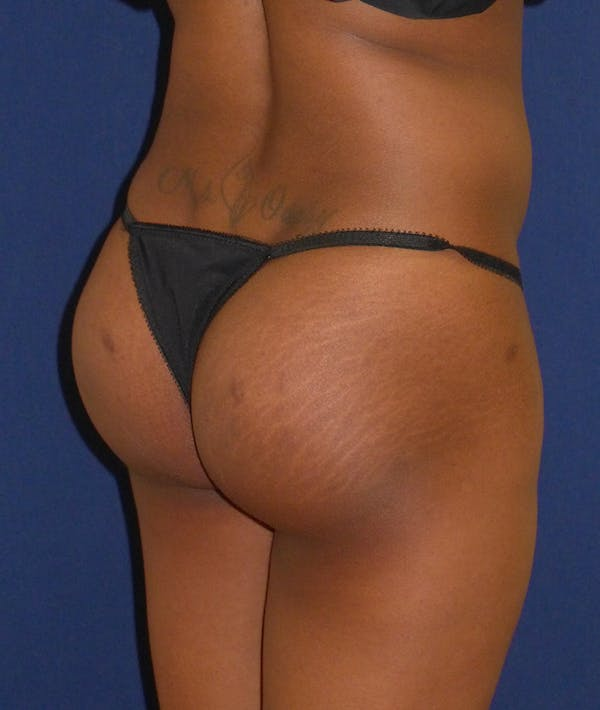 Buttock Lift Gallery - Patient 4861774 - Image 8