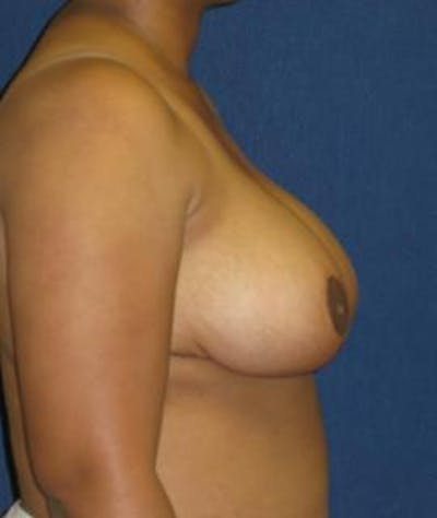 Breast Reduction Gallery - Patient 4861773 - Image 4
