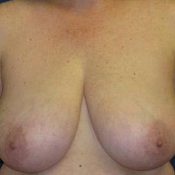 Breast Reduction Gallery - Patient 4861775 - Image 1