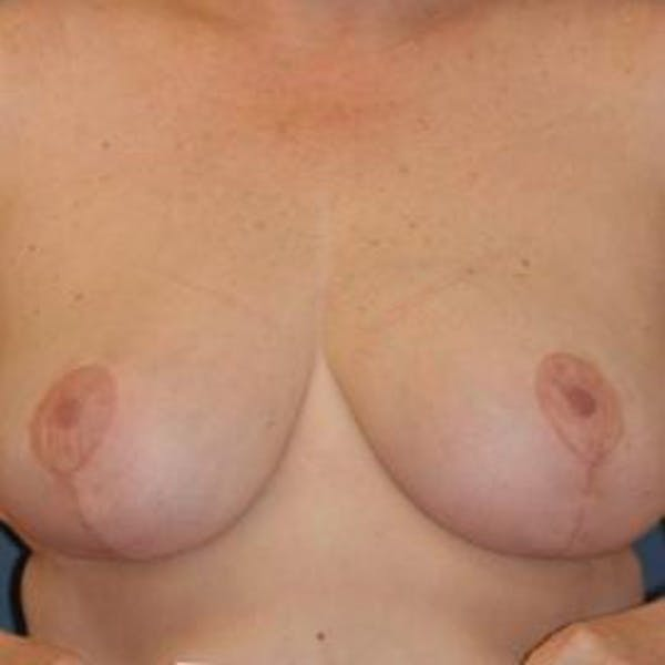 Breast Reduction Gallery - Patient 4861775 - Image 2