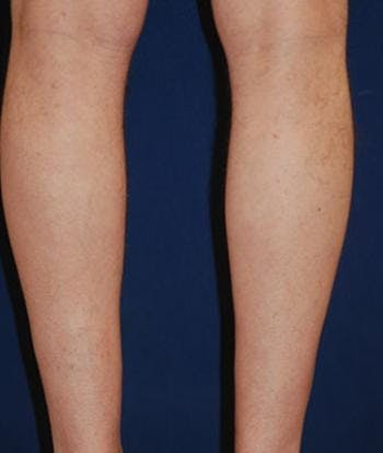 Calf Augmentation with Implants Gallery - Patient 4861776 - Image 1