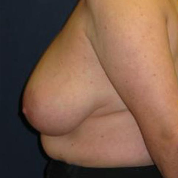 Breast Reduction Gallery - Patient 4861775 - Image 3
