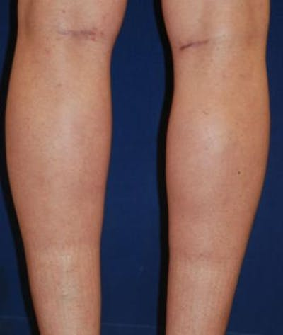 Calf Augmentation with Implants Gallery - Patient 4861776 - Image 2