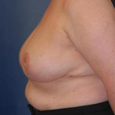 Breast Reduction Gallery - Patient 4861775 - Image 4