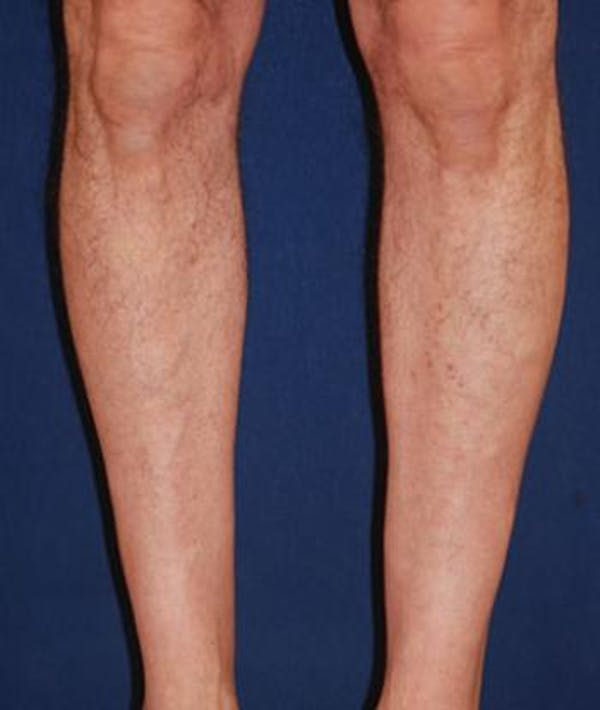 Calf Augmentation with Implants Gallery - Patient 4861776 - Image 3