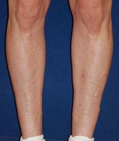 Calf Augmentation with Implants Gallery - Patient 4861776 - Image 4