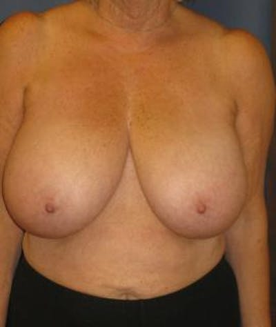 Breast Reduction Gallery - Patient 4861778 - Image 1