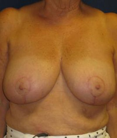 Breast Reduction Gallery - Patient 4861778 - Image 2