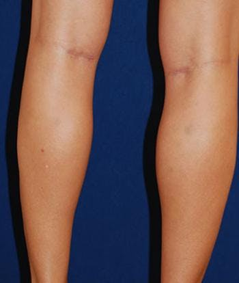 Calf Augmentation with Implants Gallery - Patient 4861777 - Image 2