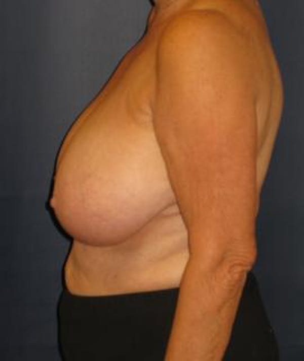 Breast Reduction Gallery - Patient 4861778 - Image 3