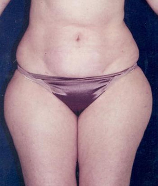 Liposuction Gallery - Patient 4861779 - Image 1
