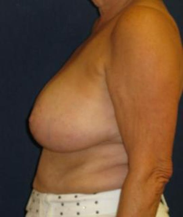 Breast Reduction Gallery - Patient 4861778 - Image 4