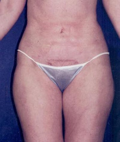 Liposuction Gallery - Patient 4861779 - Image 2