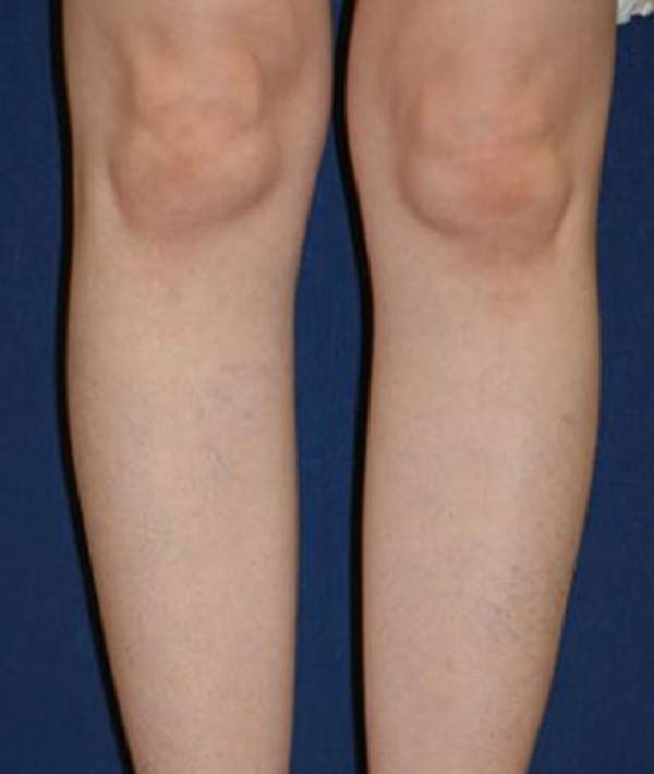Calf Augmentation with Implants Gallery - Patient 4861780 - Image 1
