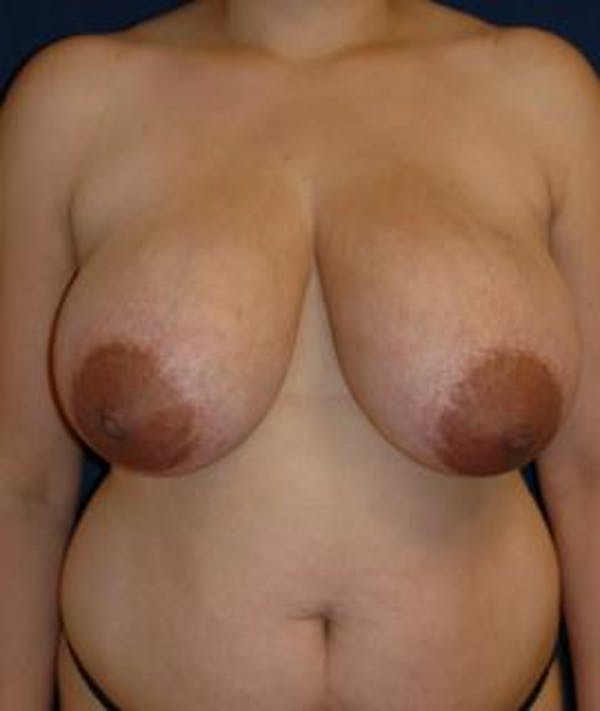 Breast Reduction Gallery - Patient 4861782 - Image 1