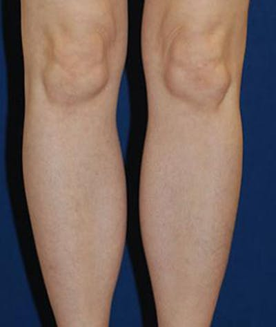 Calf Augmentation with Implants Gallery - Patient 4861780 - Image 2