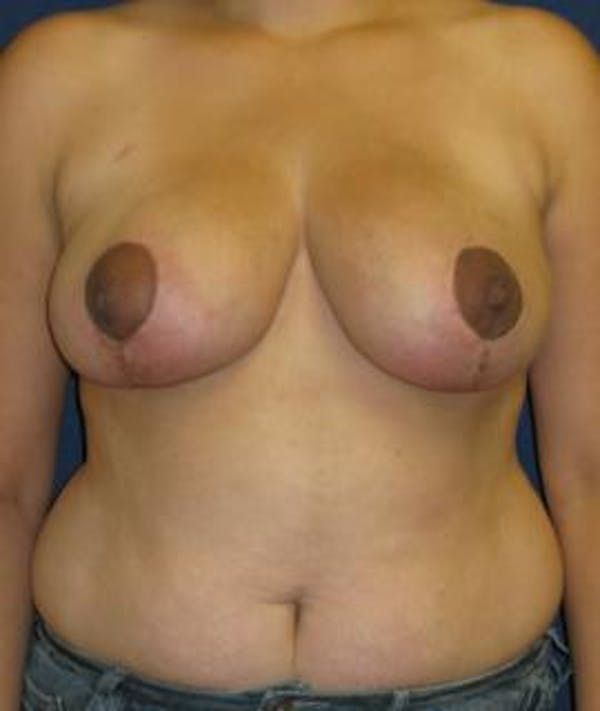 Breast Reduction Gallery - Patient 4861782 - Image 2