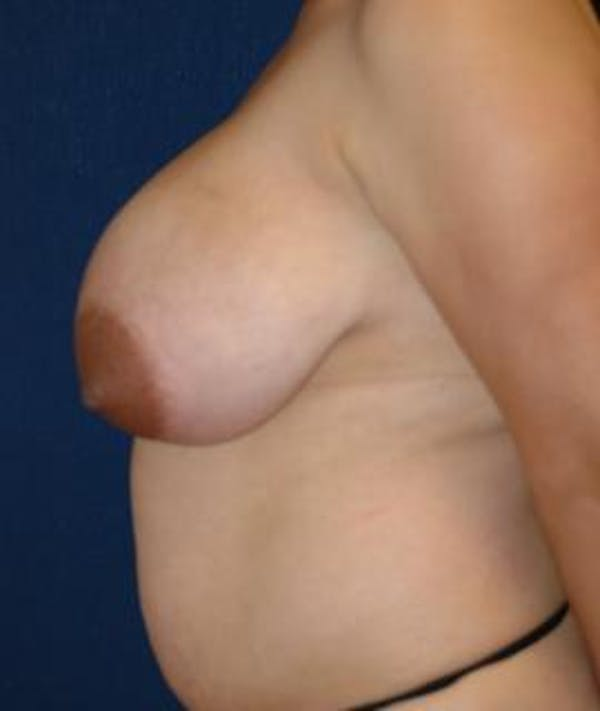 Breast Reduction Gallery - Patient 4861782 - Image 3