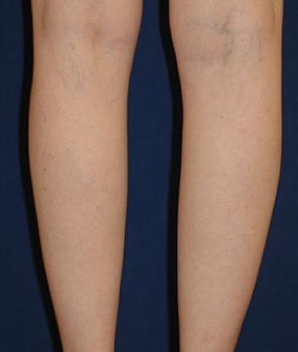 Calf Augmentation with Implants Gallery - Patient 4861780 - Image 3