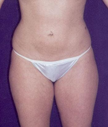 Liposuction Gallery - Patient 4861783 - Image 2