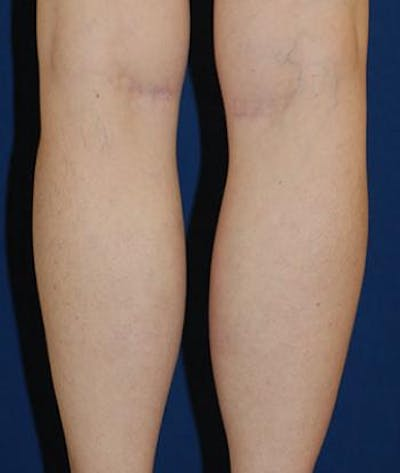 Calf Augmentation with Implants Gallery - Patient 4861780 - Image 4