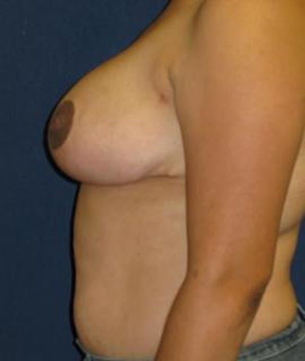 Breast Reduction Gallery - Patient 4861782 - Image 4