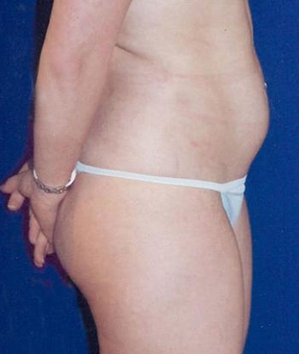 Liposuction Gallery - Patient 4861783 - Image 3